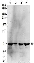 Western blot - Anti-KIAA0020 antibody (ab156692)