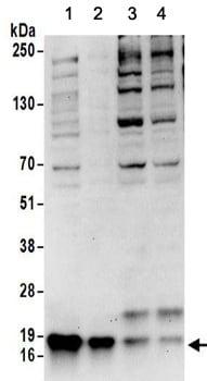 Western blot - Anti-CARHSP1 antibody (ab156694)