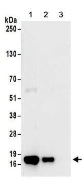 Immunoprecipitation - Anti-CARHSP1 antibody (ab156694)