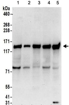 Western blot - Anti-FAM120A antibody (ab156695)