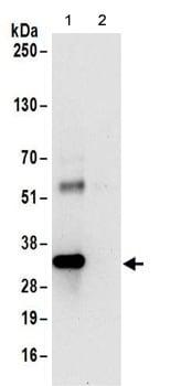 Immunoprecipitation - Anti-RRP4 antibody (ab156698)