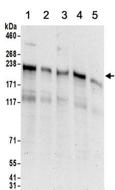 Western blot - Anti-LIMKAIN B1 antibody (ab156699)