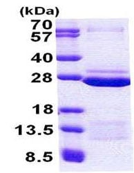 SDS-PAGE - FAM50A protein (His tag) (ab156718)