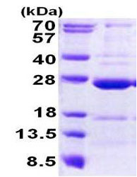 SDS-PAGE - CCDC90B protein (His tag) (ab156720)