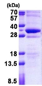 SDS-PAGE - STMN4 protein (His tag) (ab156740)