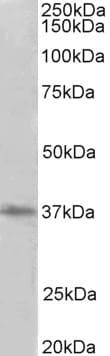 Western blot - Anti-PRMT2 antibody (ab156801)