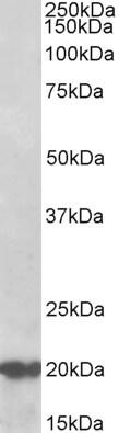 Western blot - Anti-CSP antibody - C-terminal (ab156803)