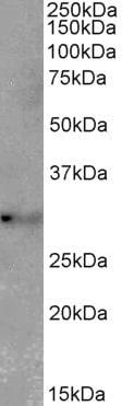 Western blot - Anti-TSPAN14 antibody (ab156804)