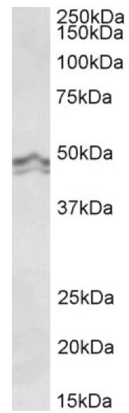 Western blot - Anti-HRH3 antibody (ab156810)