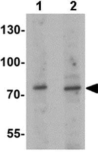 Western blot - Anti-JAKMIP1 antibody (ab156853)