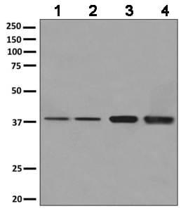 Western blot - Anti-ANKRD2 antibody [EPR10730(B)] (ab156875)