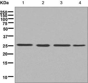 Western blot - Anti-AK3L1 antibody [EPR7679] (ab156880)