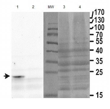 Western blot - Anti-Hsp31p antibody (ab156936)