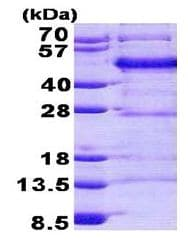 SDS-PAGE - FBLIM1 protein (His tag) (ab156959)