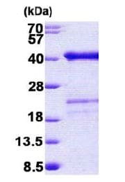 SDS-PAGE - SURF2 protein (His tag) (ab156963)