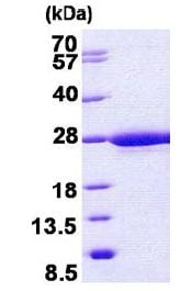 SDS-PAGE - RABL5 protein (His tag) (ab156964)