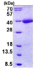 SDS-PAGE - Tomoregulin-1 precursor protein (His tag) (ab156965)
