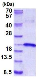 SDS-PAGE - IL17B protein (His tag) (ab156976)