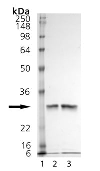 SDS-PAGE - Cathepsin K protein (Active) (ab157067)