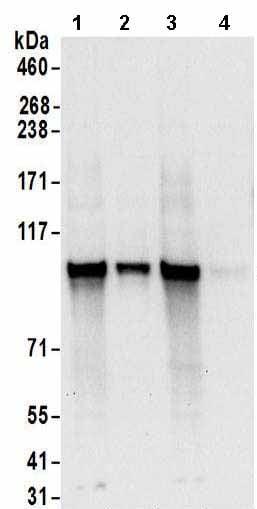 Western blot - Anti-RBM28 antibody (ab157092)
