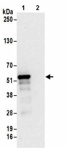 Immunoprecipitation - Anti-PHAX antibody (ab157096)