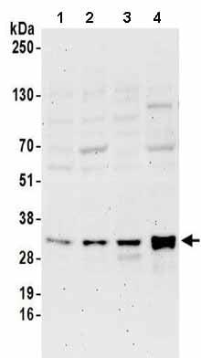 Western blot - Anti-METTL1 antibody (ab157097)