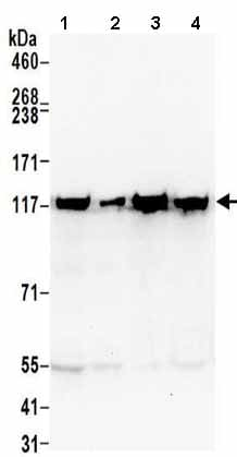Western blot - Anti-ATP citrate lyase antibody (ab157098)
