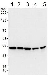 Western blot - Anti-RPL5 antibody (ab157099)