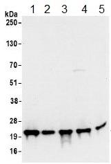 Western blot - Anti-Ribosomal protein S11 antibody (ab157101)
