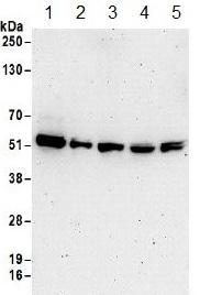 Western blot - Anti-RBM22 antibody (ab157105)