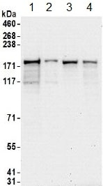 Western blot - Anti-hUPF2/RENT2 antibody (ab157108)