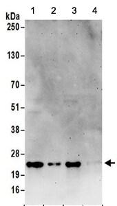 Western blot - Anti-RPL23A antibody (ab157110)