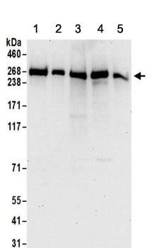 Western blot - Anti-PRPF8 antibody (ab157114)