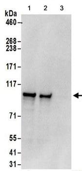Immunoprecipitation - Anti-Methionyl tRNA synthetase antibody (ab157115)
