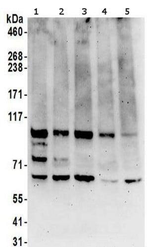 Western blot - Anti-Methionyl tRNA synthetase antibody (ab157119)