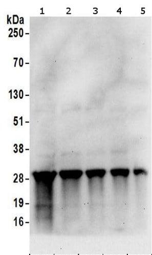 Western blot - Anti-SNRPA1 antibody (ab157121)