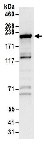 Immunoprecipitation - Anti-Glutamyl Prolyl tRNA synthetase antibody (ab157122)