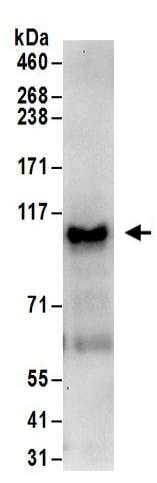 Immunoprecipitation - Anti-SP1 antibody (ab157123)