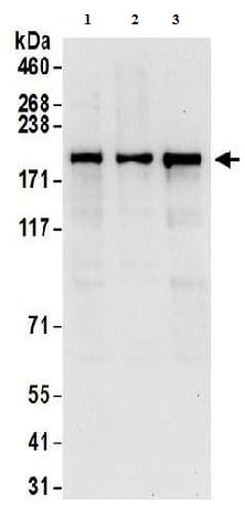 Western blot - Anti-Glutamyl Prolyl tRNA synthetase antibody (ab157128)