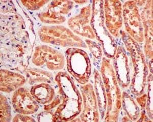 Immunohistochemistry (Formalin/PFA-fixed paraffin-embedded sections) - Anti-DCDC2 antibody [EPR11126(B)] (ab157186)