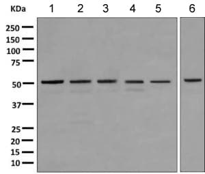 Western blot - Anti-STK25 antibody [EPR10306] (ab157188)