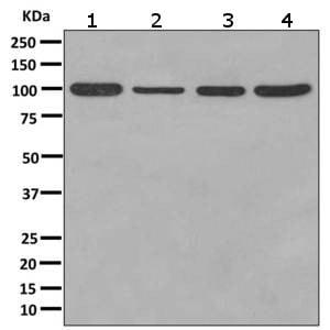 Western blot - Anti-RASA4 antibody [EPR10515] (ab157190)