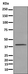 Western blot - Anti-UPB1 antibody [EPR9132] (ab157195)