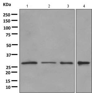 Western blot - Anti-CHMP2B antibody [EPR10807(B)] (ab157208)