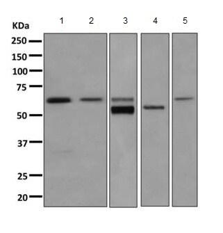 Western blot - Anti-Cytoplasmic dynein 1 light intermediate chain 1 antibody [EPR11240] (ab157468)