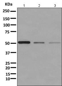 Western blot - Anti-UGP2 antibody [EPR10626] (ab157473)