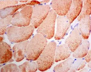 Immunohistochemistry (Formalin/PFA-fixed paraffin-embedded sections) - Anti-UGP2 antibody [EPR10626] (ab157473)