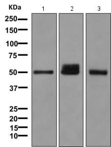 Western blot - Anti-UGT1A6 antibody [EPR11068] (ab157476)