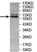 Western blot - Anti-LRRC15 antibody (ab157484)