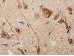 Immunohistochemistry (Formalin/PFA-fixed paraffin-embedded sections) - Anti-LRRC15 antibody (ab157484)